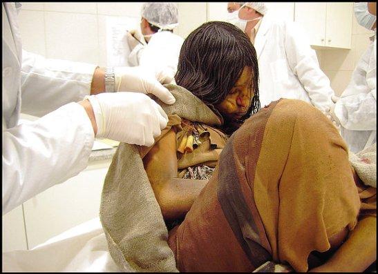 Cientistas examinam a Donzela, a mais velha das três crianças incas descobertas nos Andes. As múmias são extraordinariamente bem preservadas.