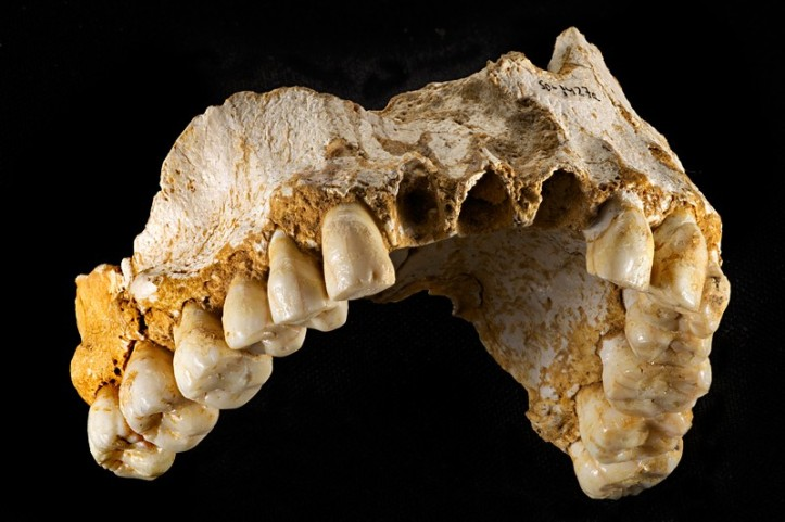 tooth3-800x533